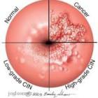 Penyakit Kanker Rahim Dan Gejalanya