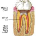 Penyakit gigi , mulut dan gusi , pencegahannya , ciri ciri gejalanya, dan pengobatanya