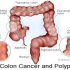 Penyakit kanker usus, pencegahan, tanda ciri- ciri gejalanya dan pengobatan