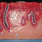 Macam –macam penyakit kanker, cara mencegah, penyebab, gejala,ciri ciri dan obatnya