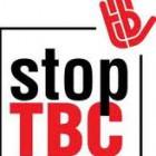 Pengertian Penyakit TBC Paru, Gejala, Penyebab,Tanda Ciri dan Cara Mengobatinnya